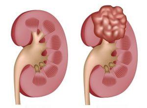 cáncer-riñón