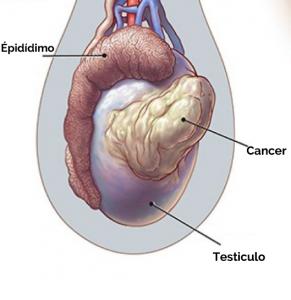 tumor-testiculos